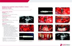 clinical-studies-Immediate-loading-web2