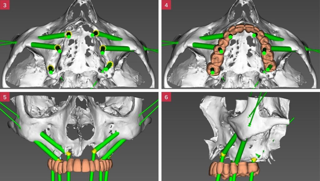 [4-6] Implant positions are planned to support the desired screw-retained rehabilitation