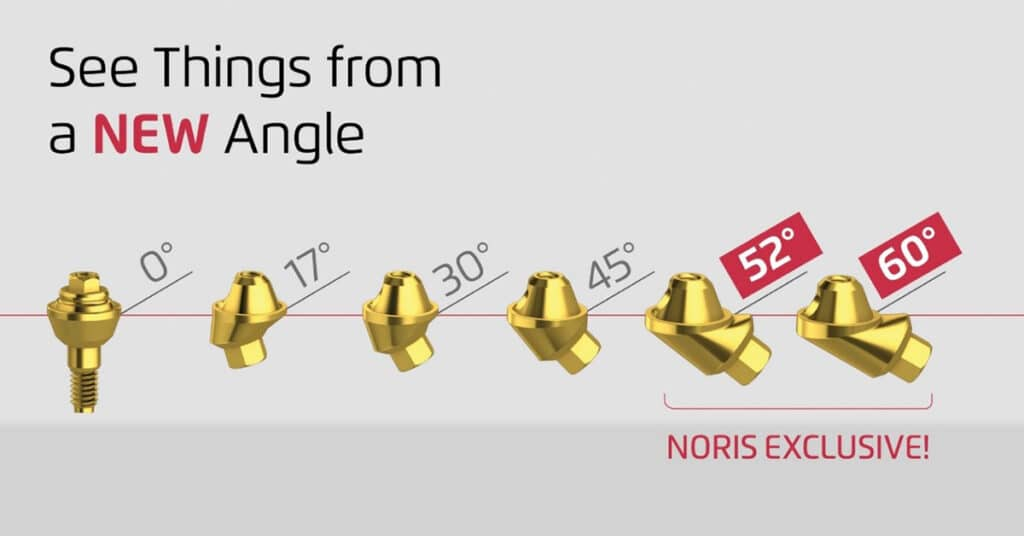 Noris Medical angled Multi-Unit abutments (45˚, 52˚ and 60˚) provide the angle correction needed.