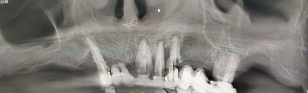 Pre-Op panoramic x-ray
