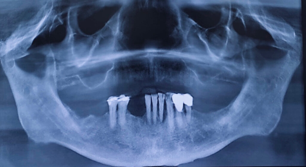 3.Pre-treatment panoramic radiograph showing pneumatized maxillary sinuses, failing mandibular teeth, etc.