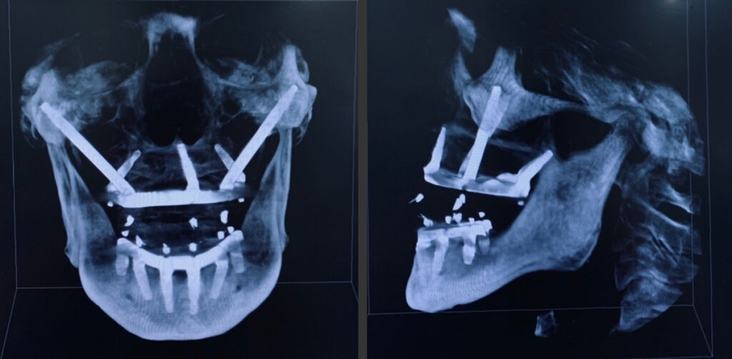 10.Final radiograph after treatment. Maxilla was restored with Noris Medical™ Tuff™ implants, zygomatic implants, and Pteryfit™ implants while the mandible was restored with Noris Medical™ Tuff™ implants. 11. CBCT scan (cranial view )of restored case with zygomatic, pterygoid, vomer, and standard dental implants.