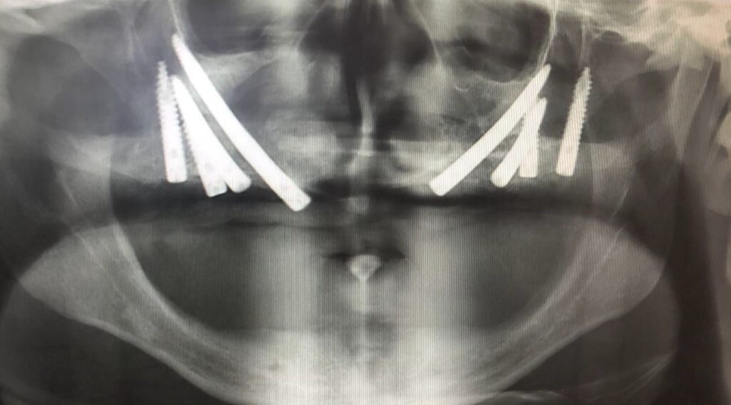 First case Post- operative X-ray