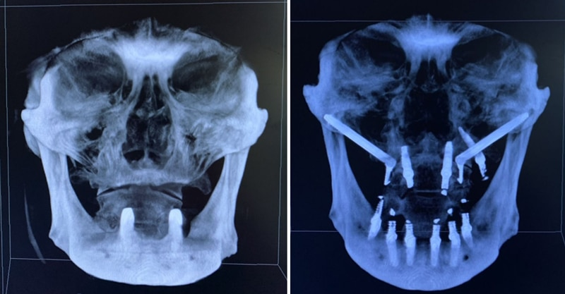 freehand zygo-pterygoid case by Dr. Dan Holtzclaw, DDS, MS - 1