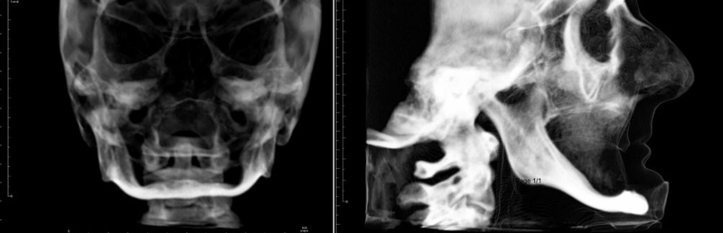 Free-hand zygomatic implant surgery with immediate loading 03